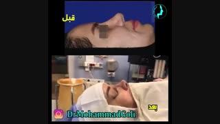 انتهای عمل بینی ( ترمیمی ) توسط دکتر گلی بهترین جراح بینی تهران