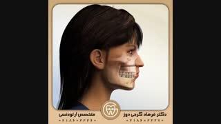 درمان لبخند لثه ای با جراحی فک   دکتر فرهاد گرجی دوز