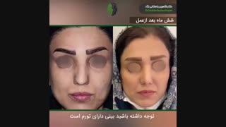 جراحی بینی طبیعی در بینی کوتاه و گوشتی | دکتر باستانی نژاد | جراح بینی